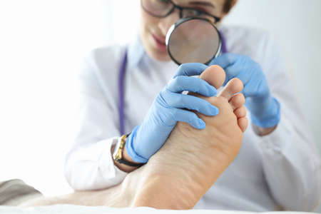 Dermatologist examining toenail with magnifying glass closeup. Diagnosis and treatment of fungal nail infections
