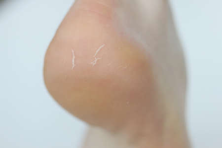 Human heel with skin problems and flaking