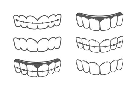 Set of teeth isolated on a white background. Bracket system. Vector illustration