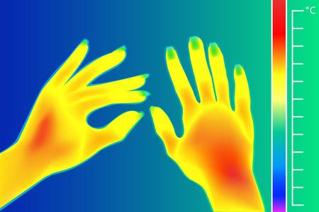 Thermische imager Menselijke handen vectorillustratie. Het beeld van een vrouwelijke arm met behulp van een infraroodtemperatuurmeter. Schaal is graden Celsius. Stock Illustratie