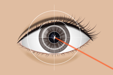 Of laser vision correction.