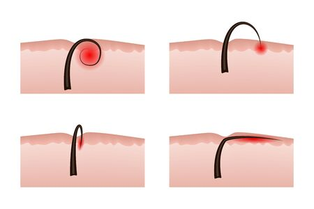 Ingrown hairs after depilation. Vector illustration. Inflammation of the skin and epidermis.
