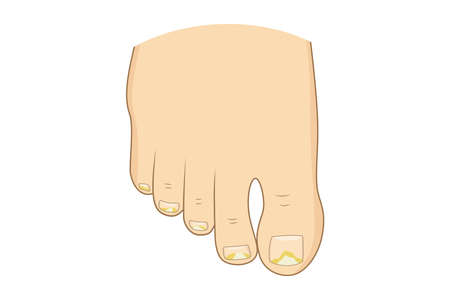 Toenail mycosis vector illustration. Toe nails health, feel fungus, body care