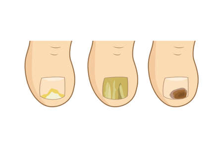 Toenail mycosis types. vector illustration. Toe nails health, feel fungus, body care