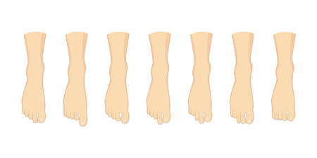 Foot toe shape types set. Human feet vector illustration. Body forefoot anatomy Ilustração