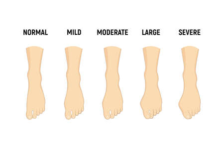 Hallux valgus disease stages, normal, mild, moderate, large, severe Vector illustration Orthopedics foot illness