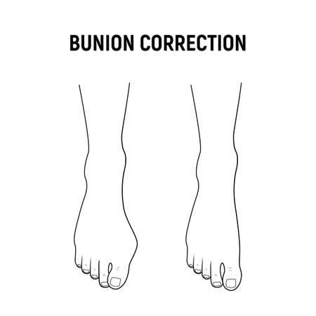 Hallux valgus, bunion surgery correction. Vector illustration. 向量圖像