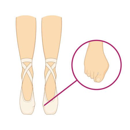 Professional ballerinas bunion illness. The dancers legs are barefoot and in pointes vector illustration. Orthopedics hallux valgus
