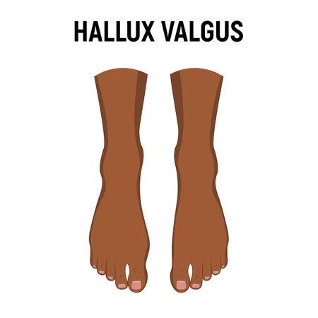 Hallux valgus problem. Vector illustration. Orthopedics bunion health 向量圖像