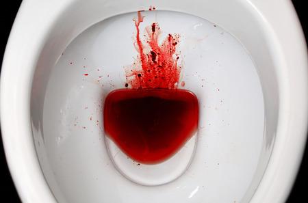 Un inodoro de cerámica blanca está manchado con sangre. Las consecuencias de la menstruación pronunciada, la disbacteriosis, la disentería, las hemorroides, el cáncer y otras enfermedades con síntomas similares Foto de archivo