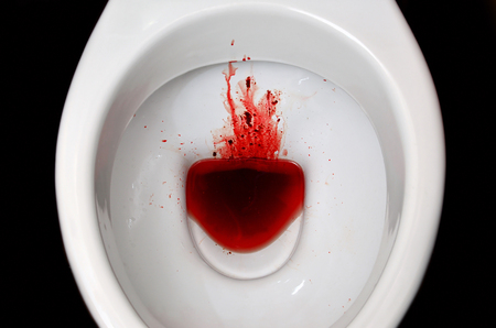 A white ceramic toilet bowl is stained with blood. The consequences of pronounced menstruation, dysbacteriosis, dysentery, haemorrhoids, cancer and other diseases with similar symptoms