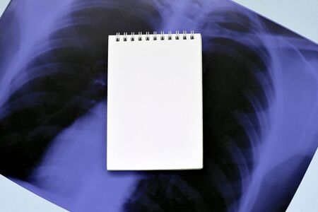 X-Ray film image of human chest for a medical diagnosis and empty blank notepad page on blue hospital table. Flat lay top view composition with copy space Stok Fotoğraf