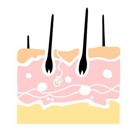 Anatomie der menschlichen Haut in einer Querschnittsansicht. ein flaches Design