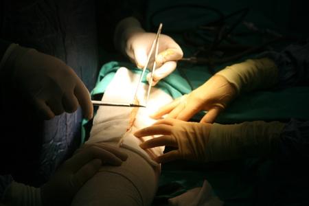 medische instrumenten: chirurgen bedrijf medische instrumenten in handen en patiënt te kijken
