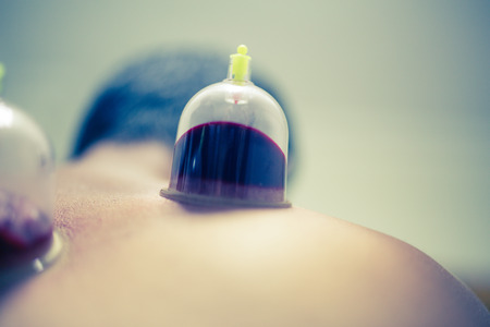 Acupuncture therapist placing cup on the back of male patient