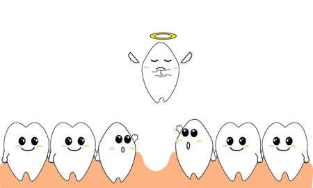 orthodontics: Diente omisi�n