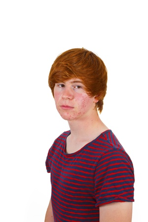 puberty: attractive boy in puberty with red hair
