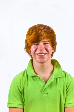 attractive boy in puberty with red hair photo