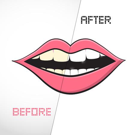 branqueamento: Vector Boca no fundo branco. Limpar os dentes, antes e depois. Ilustra��o