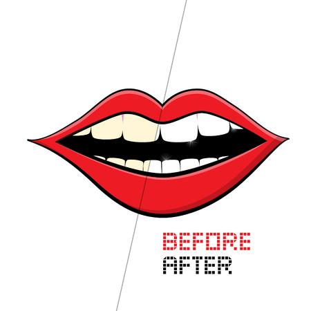 branqueamento: Vector Boca no fundo branco. Limpeza dos dentes, Antes e Depois.