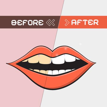 branqueamento: Retro Vector Boca Ilustração - limpeza dos dentes Símbolo