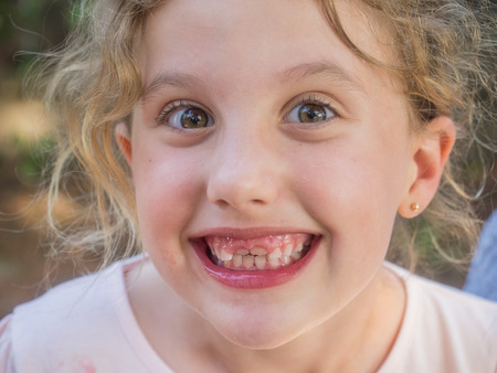 no teeth smile: Happy girl with new gap-toothed smile waiiting for permanent teeth to grow. Stock Photo