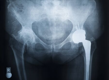 X-ray of the prosthesis of the left hip joint. The right joint is affected by rheumatoid arthritis