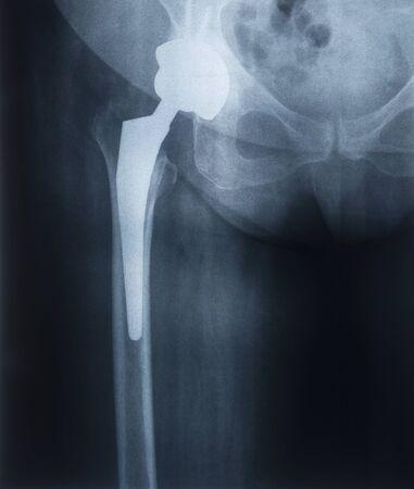 Radiographie d'une prothèse d'une articulation de la hanche féminine. Endoprothèses articulaires