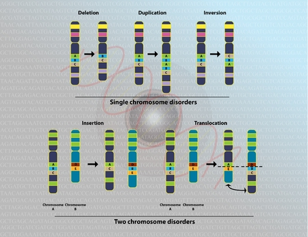 deletion: Chromosomal abnormalities Stock Photo
