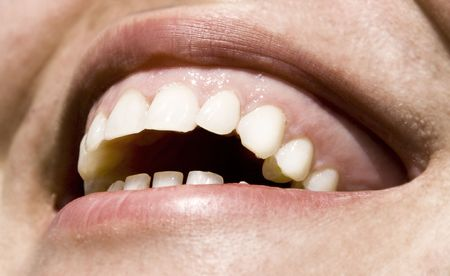 Close up on white teeth Stock Photo - 3034209