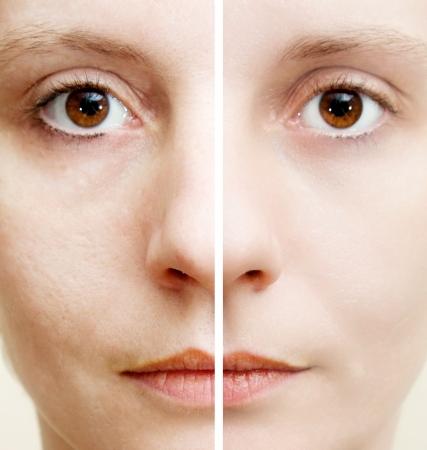 cute: Donna con spotty pelle con pori profondi e comedone e guarita pelle morbida - prima e dopo il trattamento Archivio Fotografico
