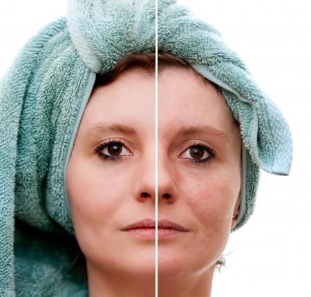 Donna con spotty pelle con pori profondi e comedone e guarita pelle morbida - prima e dopo