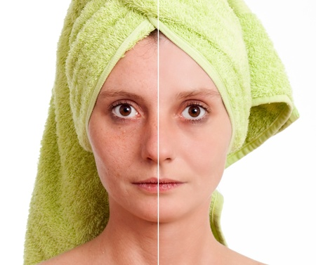 isolated spot: Woman with spotty skin with deep pores and blackhead and healed soft skin Stock Photo