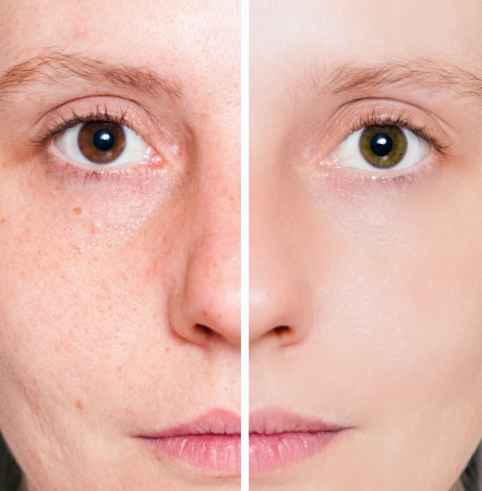 Woman with spotty skin with deep pores and blackhead and healed soft skin  Stock Photo