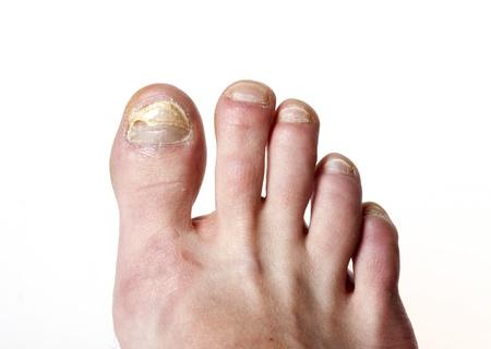 human toe: toenail fungus