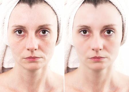 모공과 여드름 치유 부드러운 피부와 여드름 피부를 가진 여자