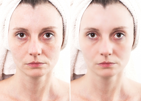 healed: Woman with spotty skin with deep pores and blackhead and healed soft skin Stock Photo
