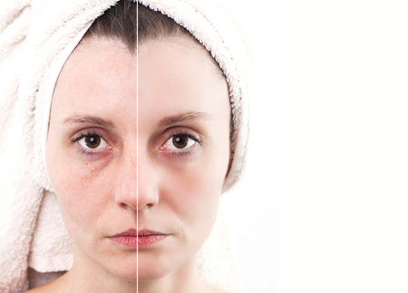 pores: Woman with spotty skin with deep pores and blackhead and healed soft skin Stock Photo