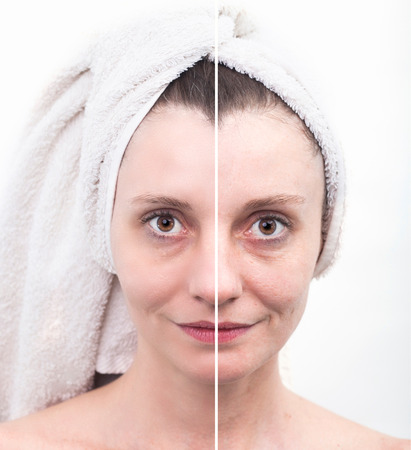blackhead: Woman with spotty skin with deep pores and blackhead and healed soft skin Stock Photo