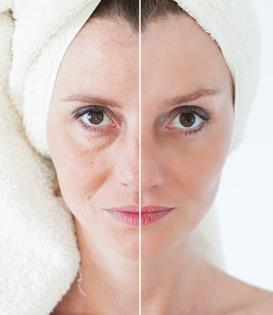 limpieza de cutis: Concepto de la belleza - cuidado de la piel, procedimientos anti-envejecimiento, rejuvenecimiento, levantar, apretar la piel facial