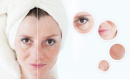 piel: Concepto de la belleza - cuidado de la piel, procedimientos anti-envejecimiento, rejuvenecimiento, levantar, apretar la piel facial