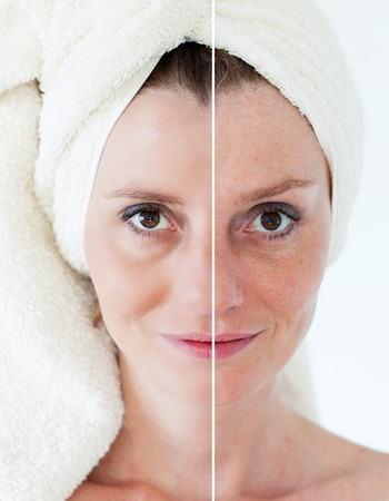 Beauty concept - skin care, anti-aging procedures, rejuvenation, lifting, tightening of facial skin Stock Photo - 38470655