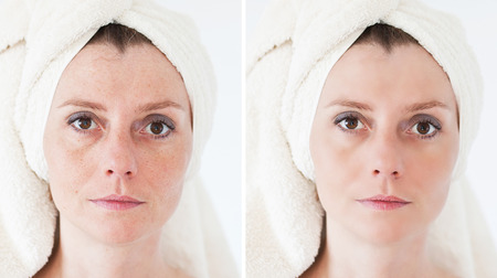 Beauty concept - skin care, anti-aging procedures, rejuvenation, lifting, tightening of facial skin Stock Photo - 38470659