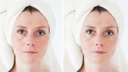 old age: Concetto di bellezza - la cura della pelle, procedure anti-invecchiamento, ringiovanimento, sollevamento, stringendo della pelle del viso Archivio Fotografico