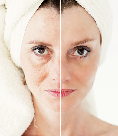from halves: Beauty concept - skin care, anti-aging procedures, rejuvenation, lifting, tightening of facial skin