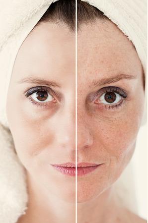 piel humana: Concepto de la belleza - cuidado de la piel, procedimientos anti-envejecimiento, rejuvenecimiento, levantar, apretar la piel facial