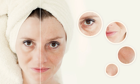 Beauty concept - skin care, anti-aging procedures, rejuvenation, lifting, tightening of facial skin Stock Photo - 39761875