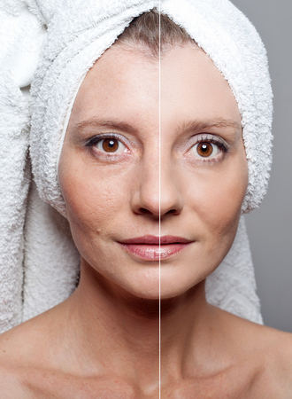 뷰티 개념 - 얼굴 피부의 강화 피부 미용, 노화 방지 절차, 원기 회복, 리프팅,