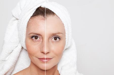 mujeres ancianas: Concepto de la belleza - cuidado de la piel, procedimientos anti-envejecimiento, rejuvenecimiento, levantar, apretar la piel facial