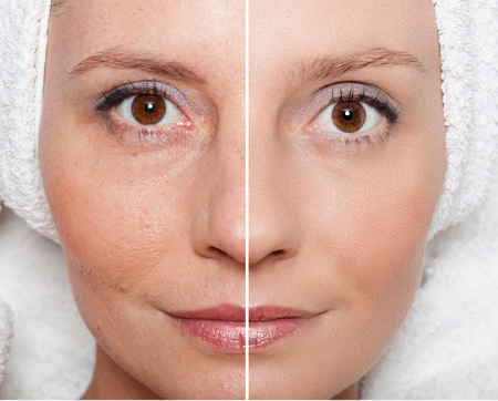 aging skin: Beauty concept - skin care, anti-aging procedures, rejuvenation, lifting, tightening of facial skin